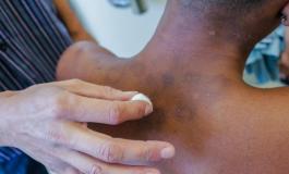Brasil tem quase 30 mil novos casos de hanseníase por ano